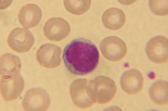 Linfocitos bajos